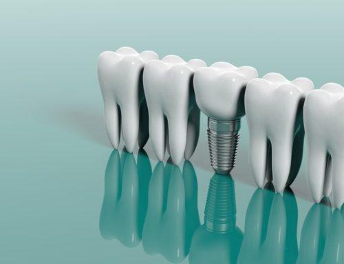 Dental implants abroad - Best Dental Tourism